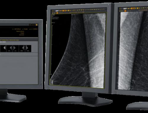 ExamVue MRS (Mammography Retrofit Solution) for Latin America | JPI Healthcare RSNA Booth #3004