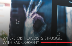 , Where Orthopedists Struggle with Radiography