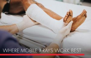 , Where Mobile X-Rays Work Best